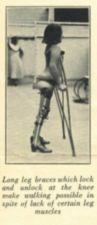 A child in braces stands using crutches.