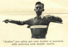 A boy stands with arms extended using splints.