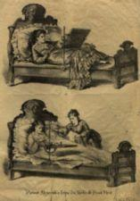 Two images - A woman lying in bed; the same woman lying in bed upright with table