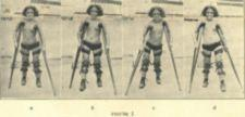 Four photographs of a child walking with crutches and braces.