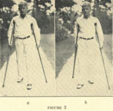 Two photographs of a young man walking with crutches.