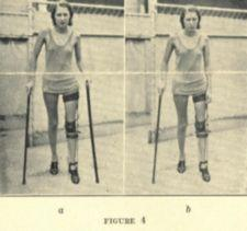 Two photographs of a woman walking with two canes and a leg brace.