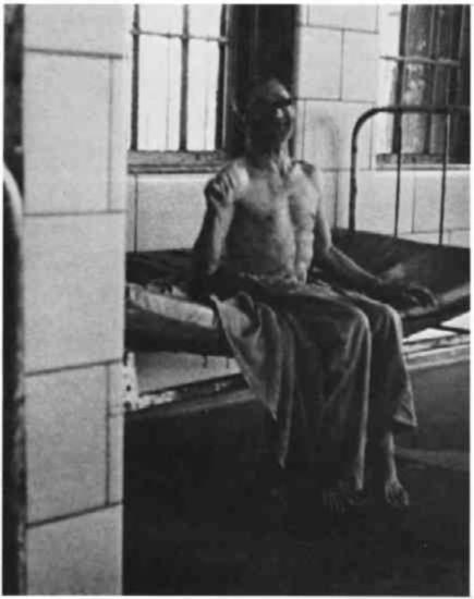 A partially clothed man sitting on a bed next to a barred window.