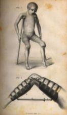 Two pictures:Top picture-little boy on crutches; Bottom picture-leg bent at knee with a brace from ankle to thigh